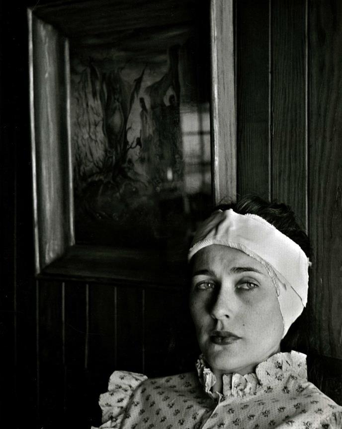 John Gutmann- Post-Surgical Portrait of an Artist, 1952