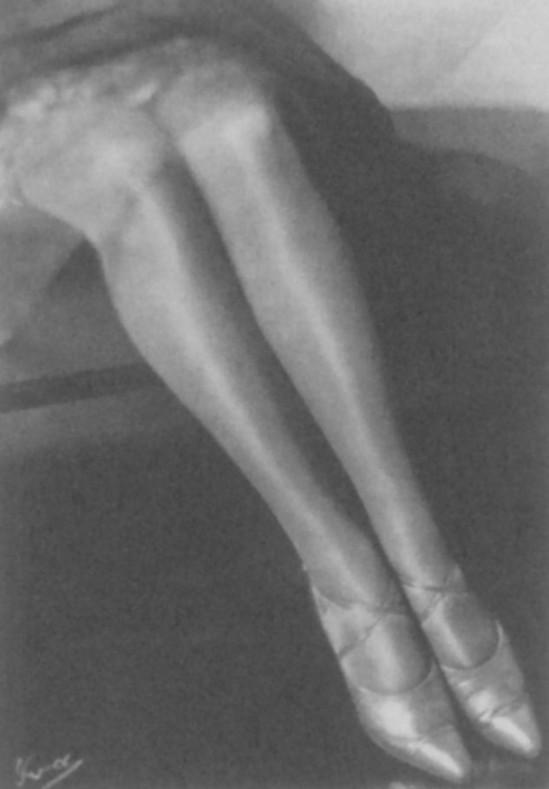Yva (Else Neuländer)-Beine Legs, 1929